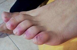 la-thrombose-est-un-symptome-quand-elle-fait-mal-gonfle-decolore-nos-bras.jpg.jpg